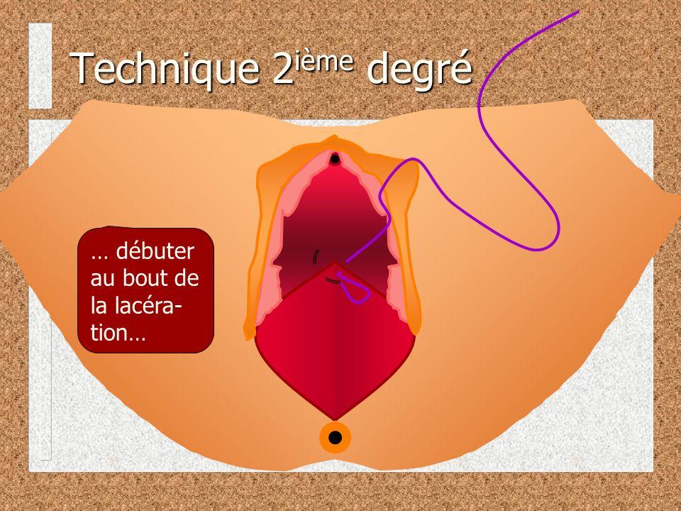 Technique 2ième degré … débuter au bout de la lacéra-tion…