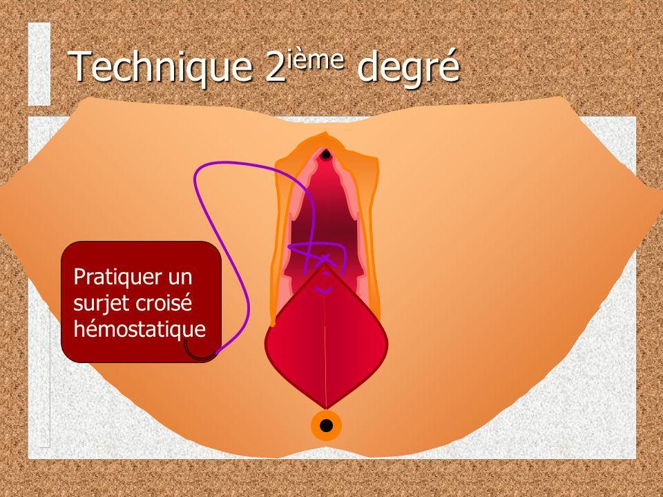 Technique 2ième degré Pratiquer un surjet croisé hémostatique