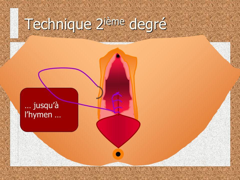 Technique 2ième degré … jusqu'à l'hymen …