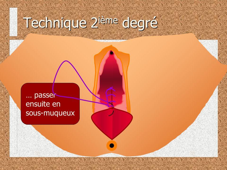 Technique 2ième degré … passer ensuite en sous-muqueux