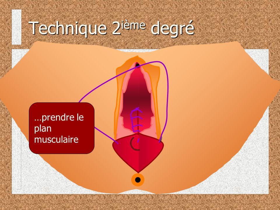 Technique 2ième degré …prendre le plan musculaire