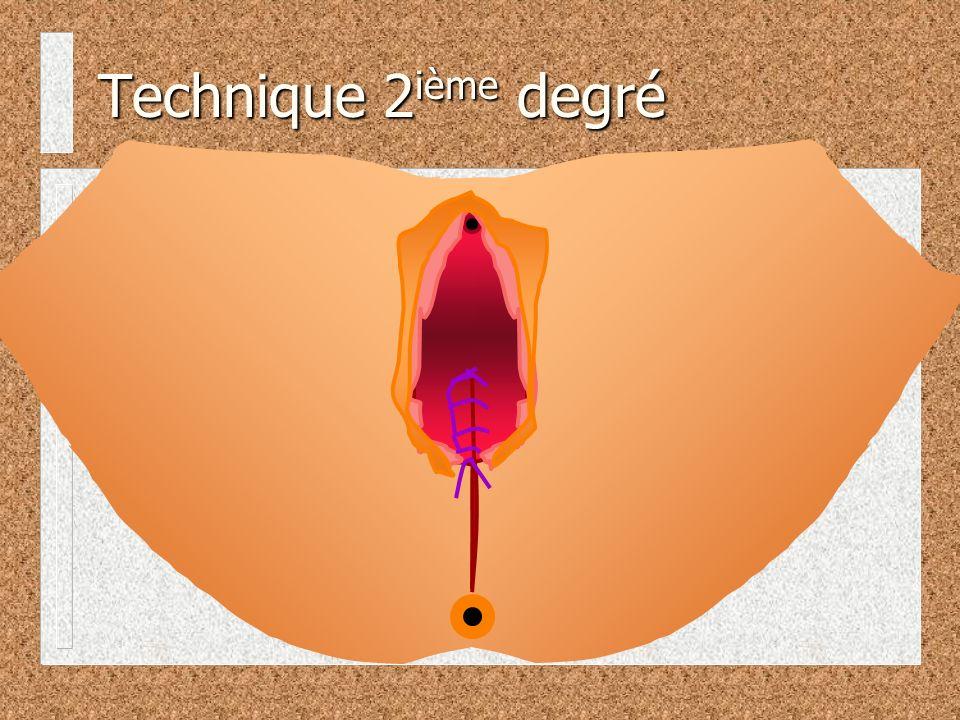 Technique 2ième degré