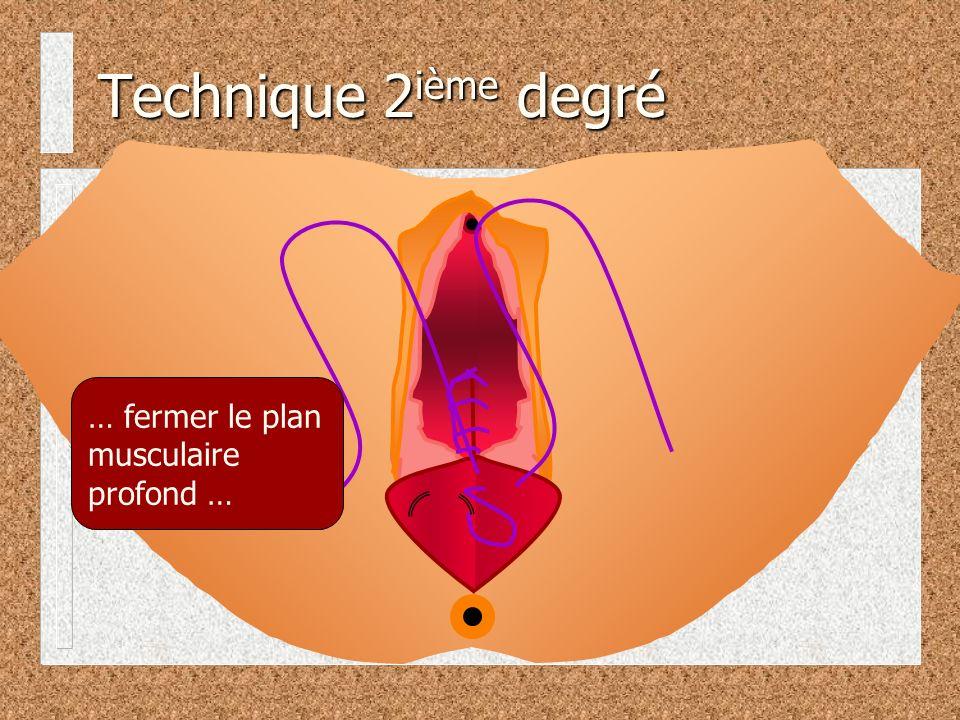 Technique 2ième degré … fermer le plan musculaire profond …