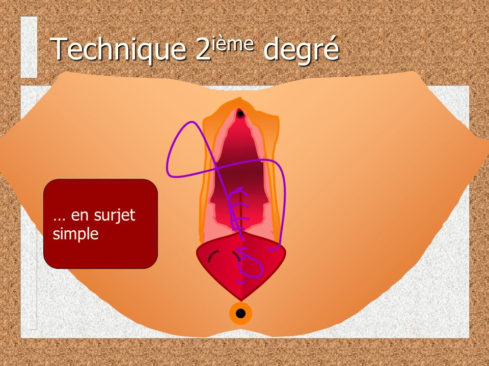 Technique 2ième degré … en surjet simple
