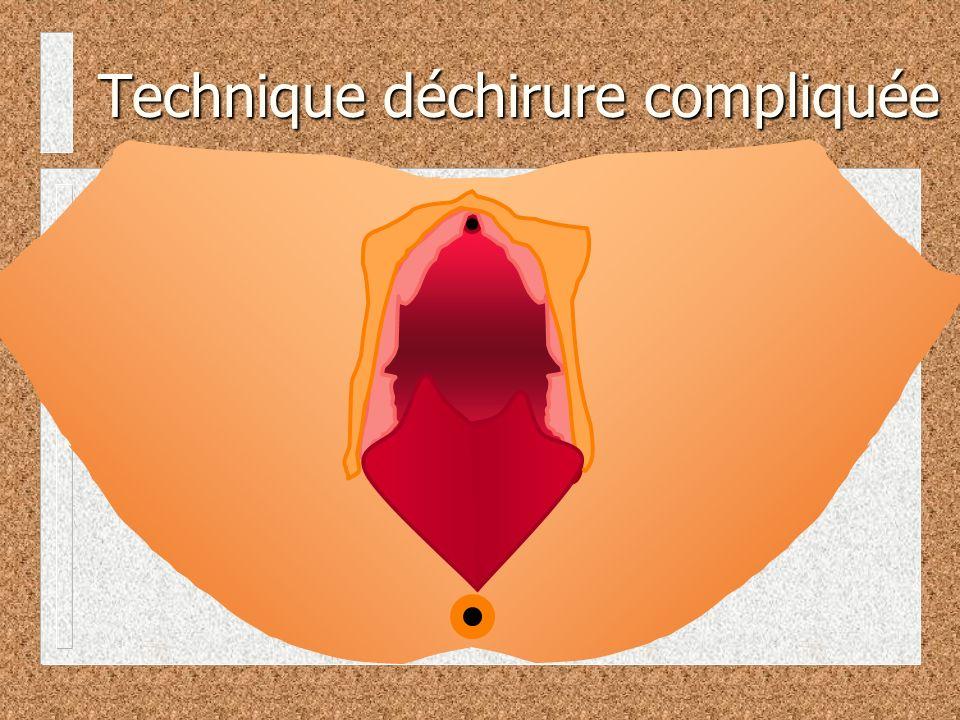 Technique déchirure compliquée
