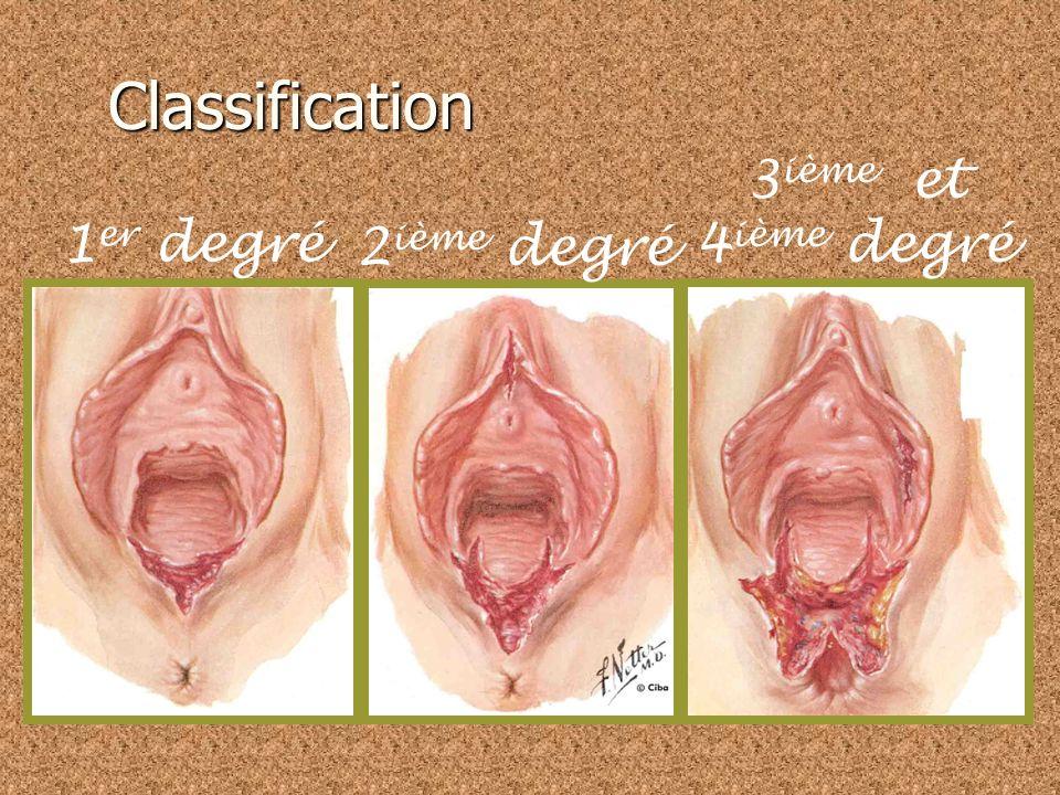 Classification 3ième et 4ième degré 1er degré 2ième degré