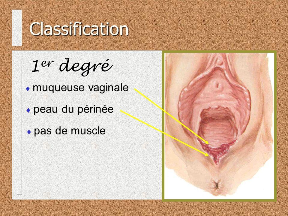 Classification 1er degré muqueuse vaginale peau du périnée