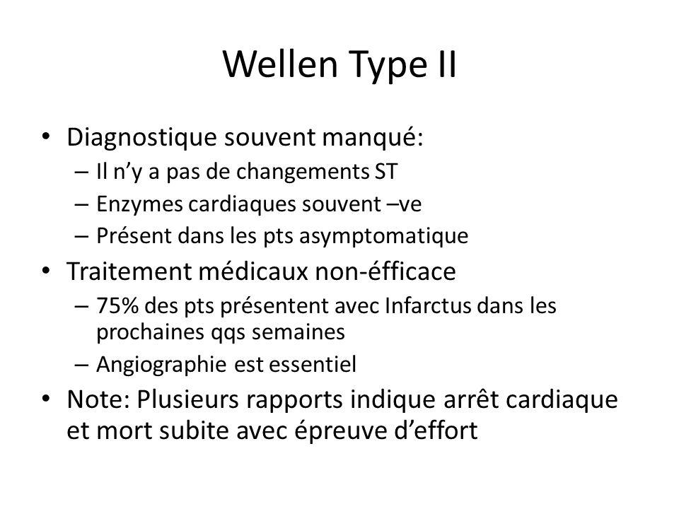 Wellen Type II Diagnostique souvent manqué: