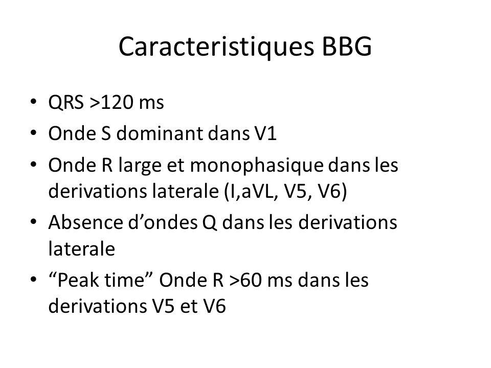 Caracteristiques BBG QRS >120 ms Onde S dominant dans V1