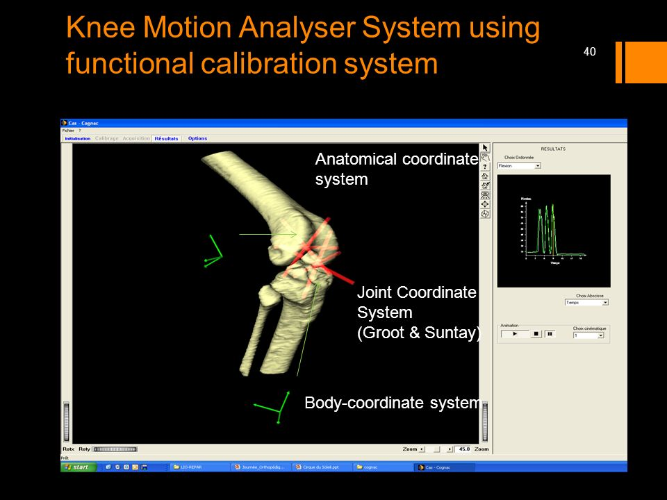 Knee Motion Analyser System using functional calibration system