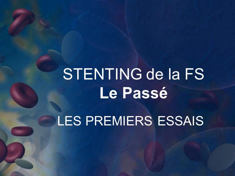 STENTING de la FS Le Passé