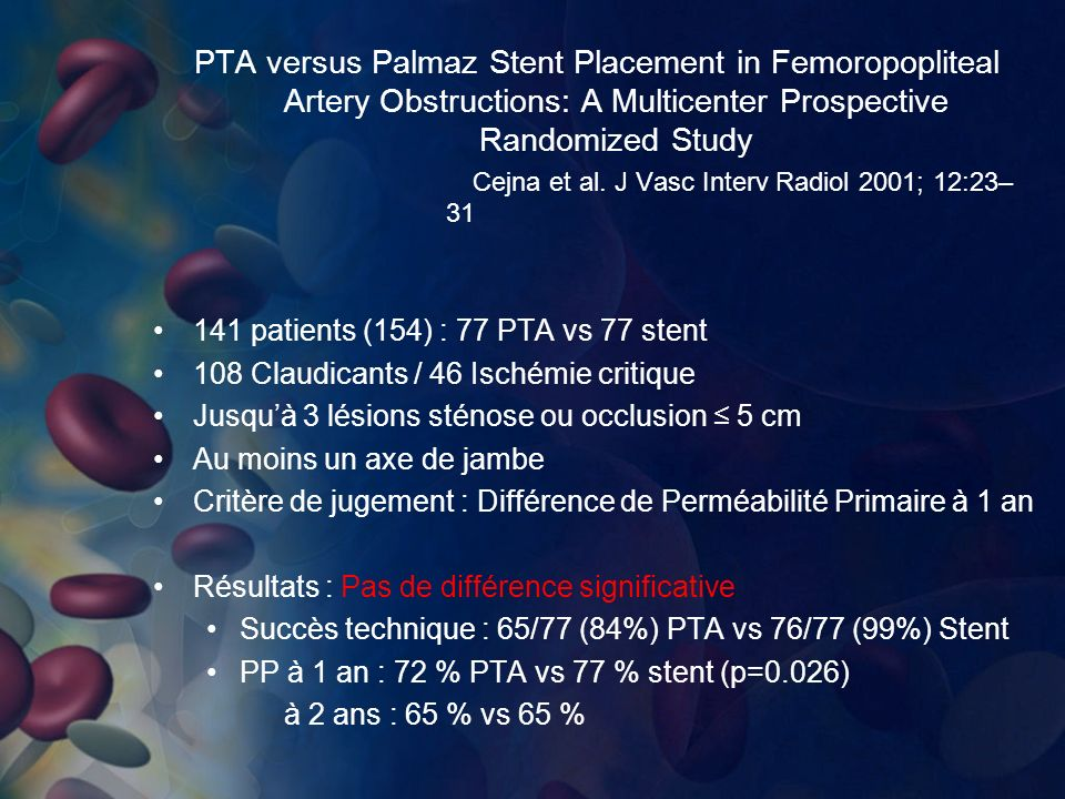 PTA versus Palmaz Stent Placement in Femoropopliteal Artery Obstructions: A Multicenter Prospective Randomized Study