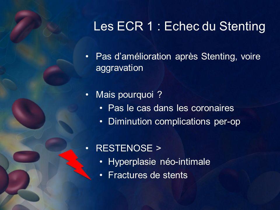 Les ECR 1 : Echec du Stenting