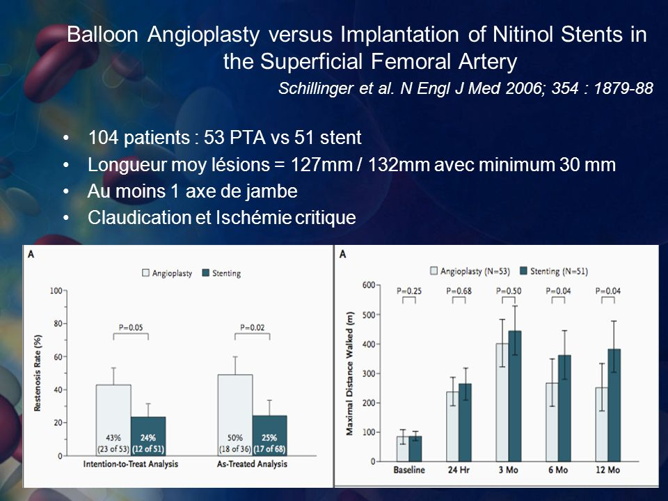 Balloon Angioplasty versus Implantation of Nitinol Stents in the Superficial Femoral Artery