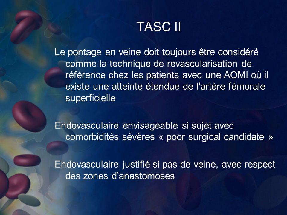 TASC II
