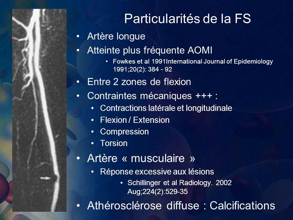 Particularités de la FS