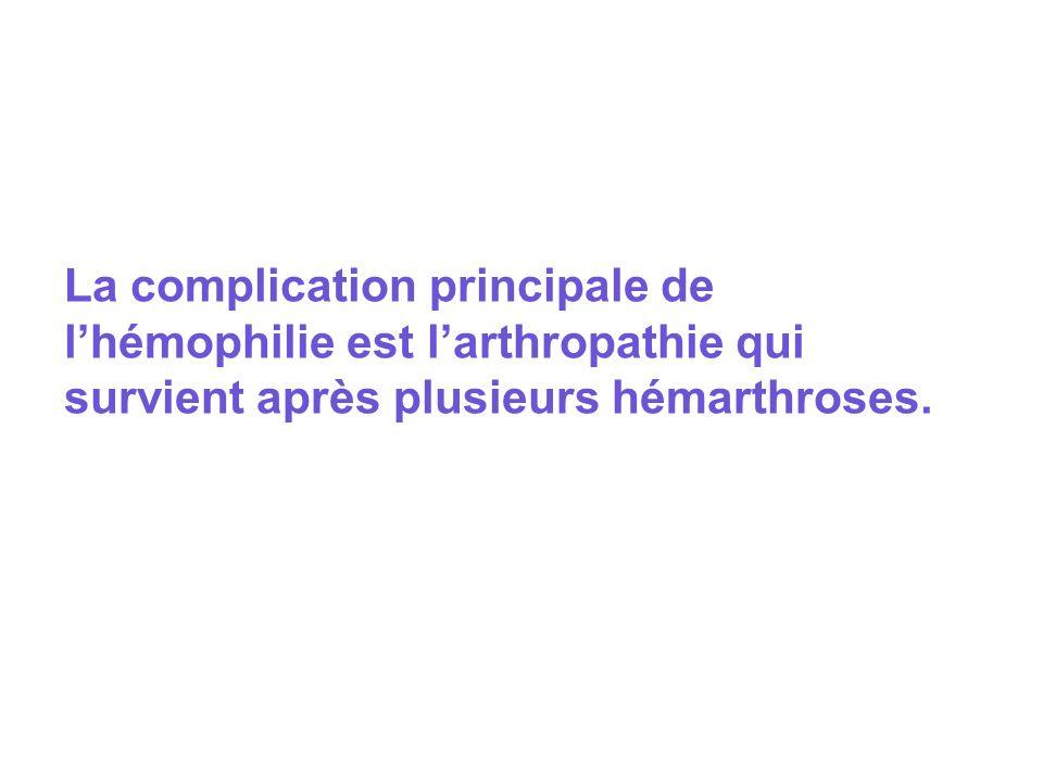 La complication principale de l'hémophilie est l'arthropathie qui survient après plusieurs hémarthroses.