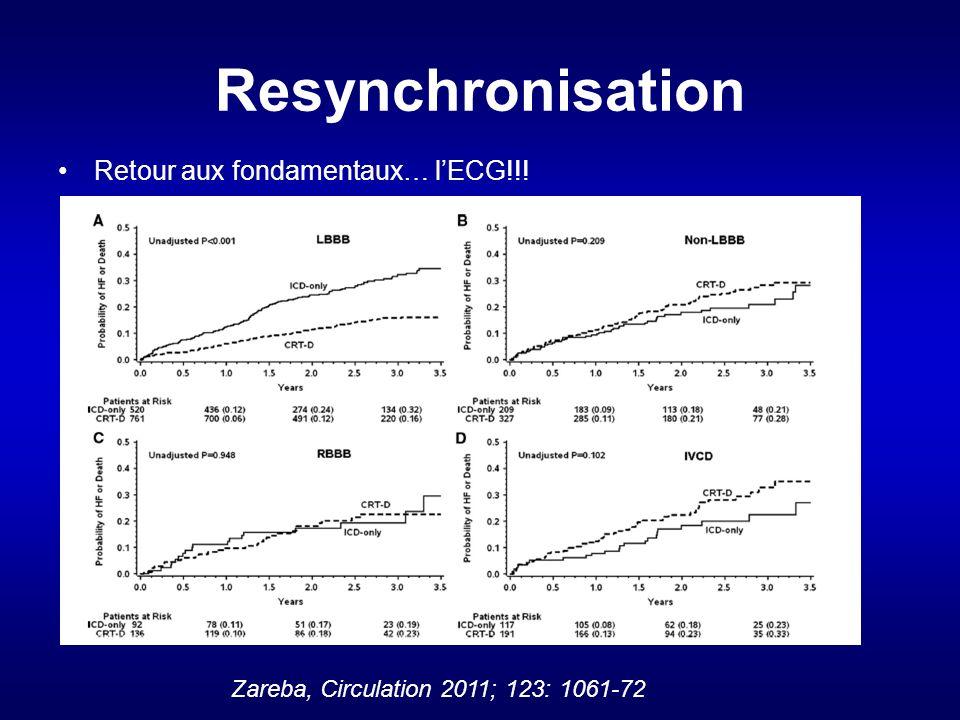 Resynchronisation Retour aux fondamentaux… l'ECG!!!