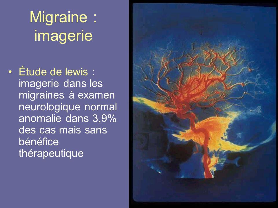 Migraine : imagerie