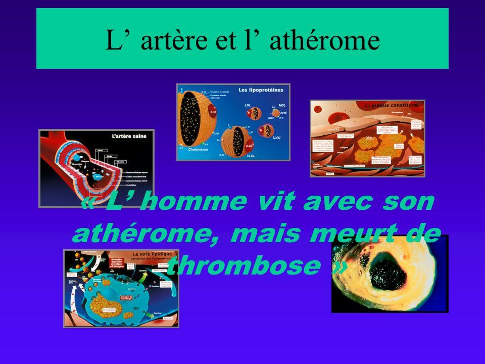 L' artère et l' athérome