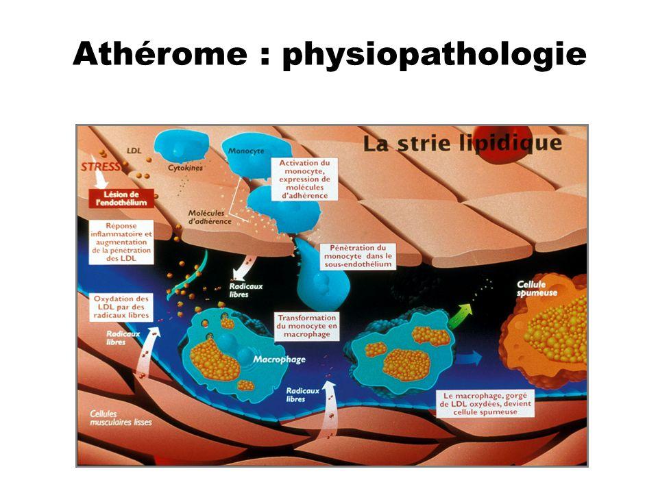 Athérome : physiopathologie