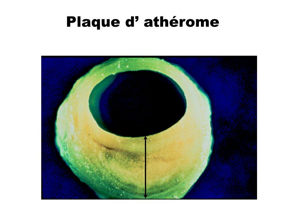 Plaque d' athérome
