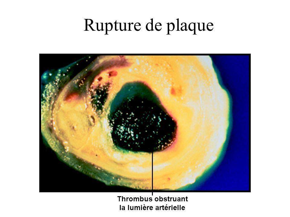 Thrombus obstruant la lumière artérielle