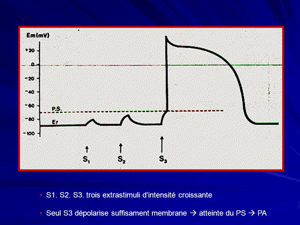 S1. S2. S3. trois extrastimuli d'intensité croissante
