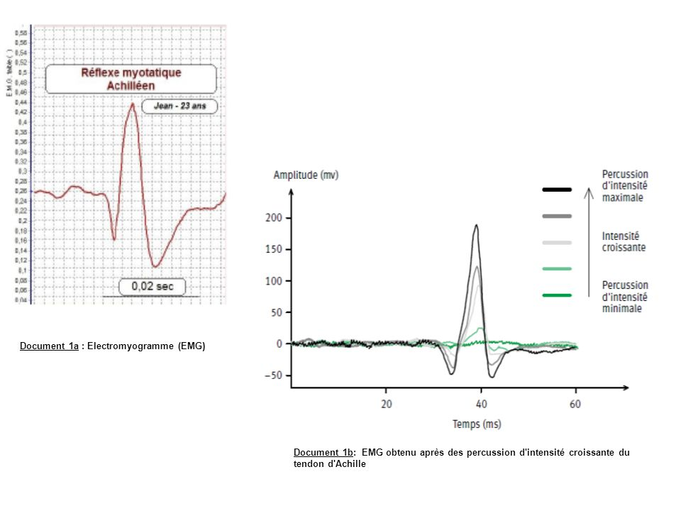 Document 1a : Electromyogramme (EMG)