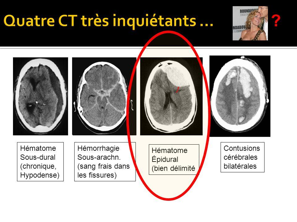 Quatre CT très inquiétants …