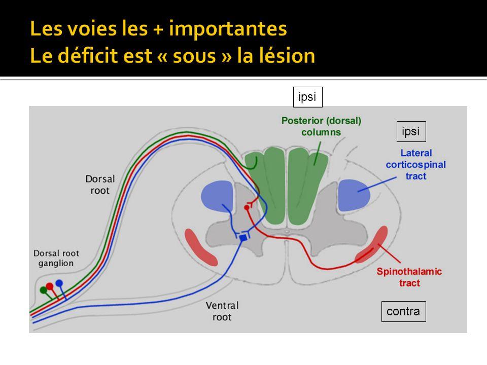 Les voies les + importantes Le déficit est « sous » la lésion