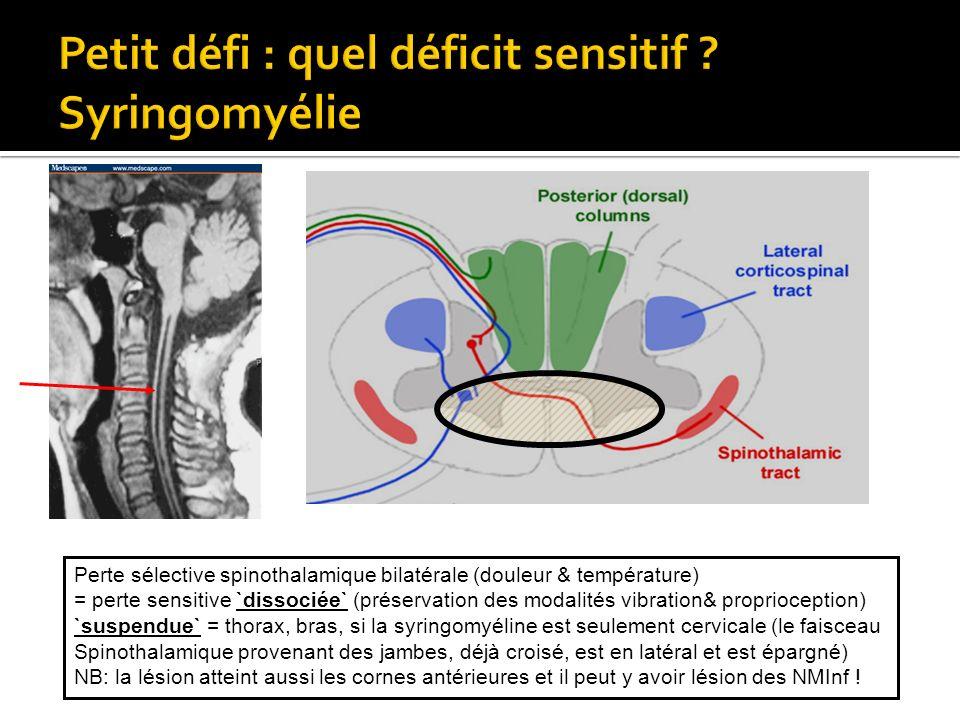 Petit défi : quel déficit sensitif Syringomyélie