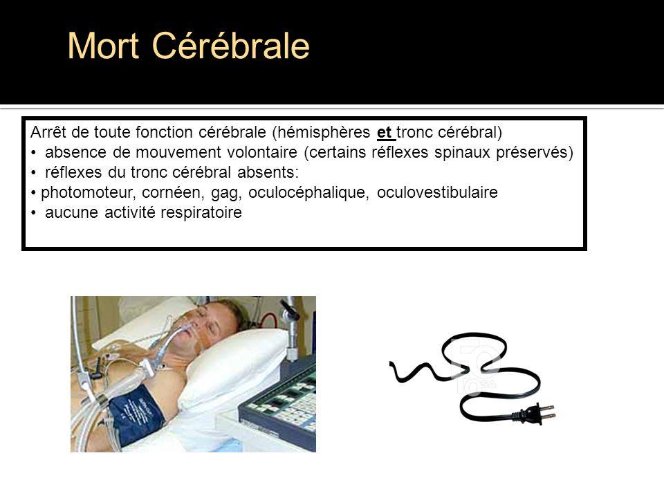 Mort Cérébrale Arrêt de toute fonction cérébrale (hémisphères et tronc cérébral)