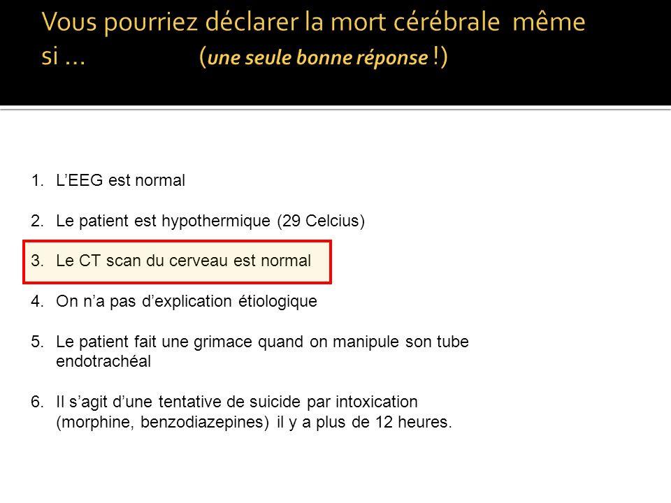 Vous pourriez déclarer la mort cérébrale même si … (une seule bonne réponse !)