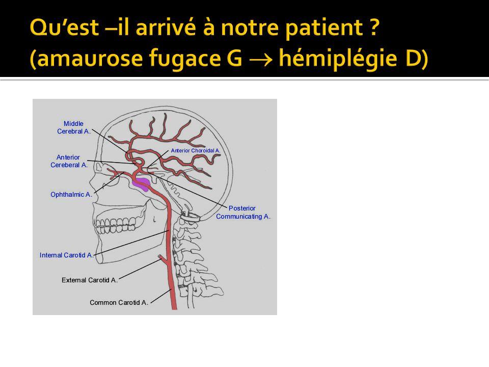 Qu'est –il arrivé à notre patient (amaurose fugace G  hémiplégie D)