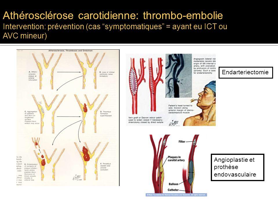 Athérosclérose carotidienne: thrombo-embolie