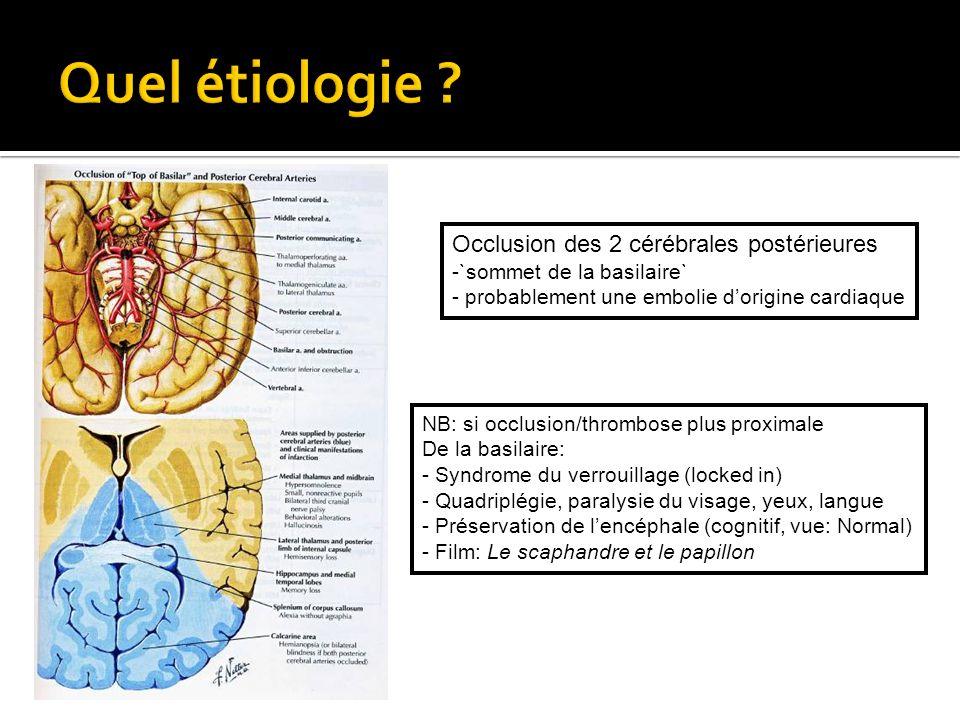 Quel étiologie Occlusion des 2 cérébrales postérieures