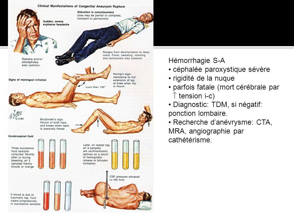 Hémorrhagie S-A céphalée paroxystique sévère. rigidité de la nuque. parfois fatale (mort cérébrale par.