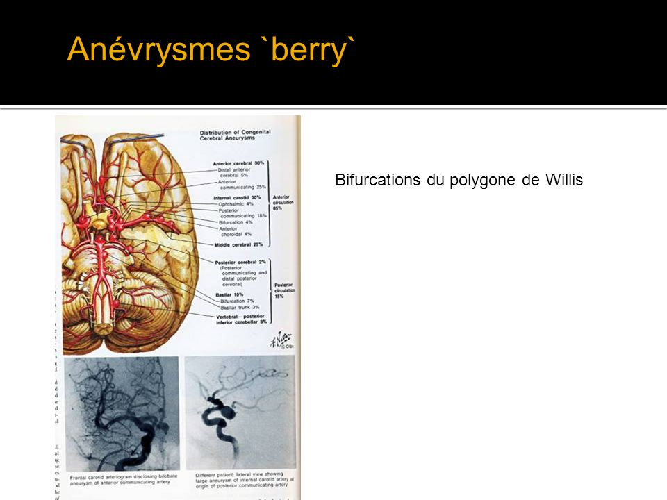 Anévrysmes `berry` Bifurcations du polygone de Willis