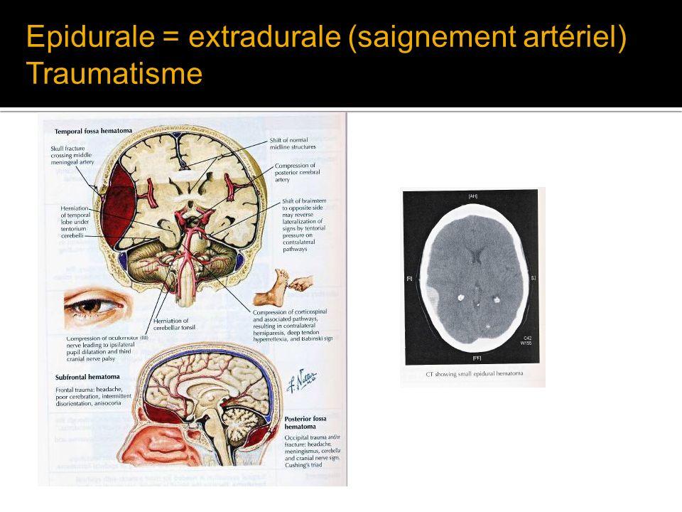 Epidurale = extradurale (saignement artériel)