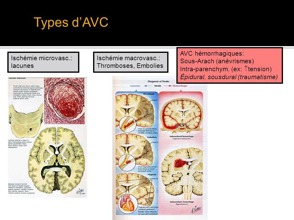 Types d'AVC AVC hémorrhagiques: Sous-Arach (anévrismes)