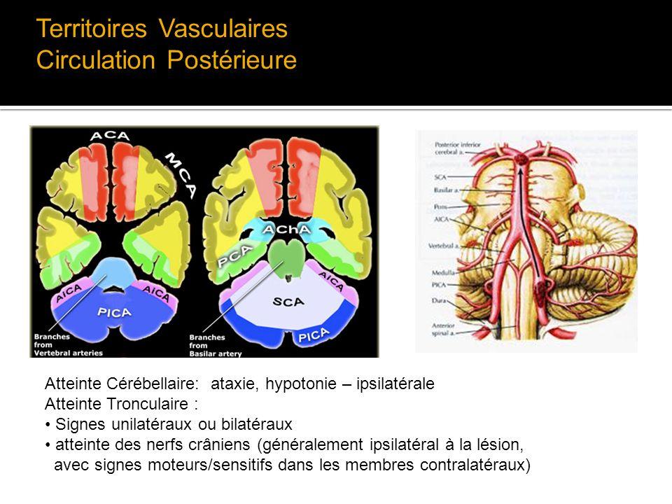 Territoires Vasculaires Circulation Postérieure