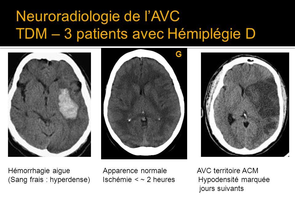 Neuroradiologie de l'AVC TDM – 3 patients avec Hémiplégie D