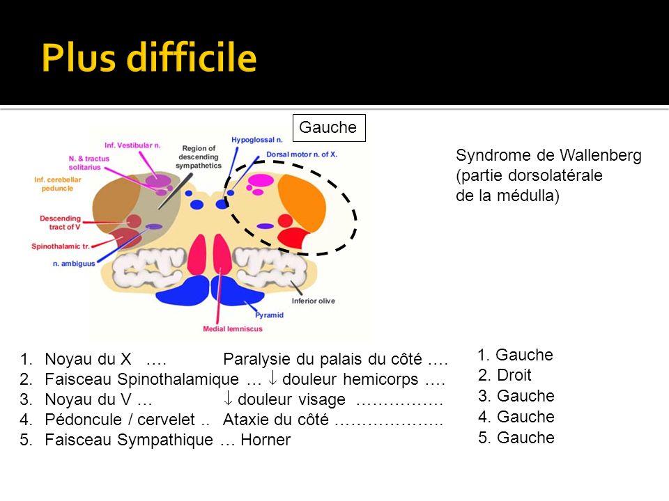Plus difficile Gauche Syndrome de Wallenberg (partie dorsolatérale