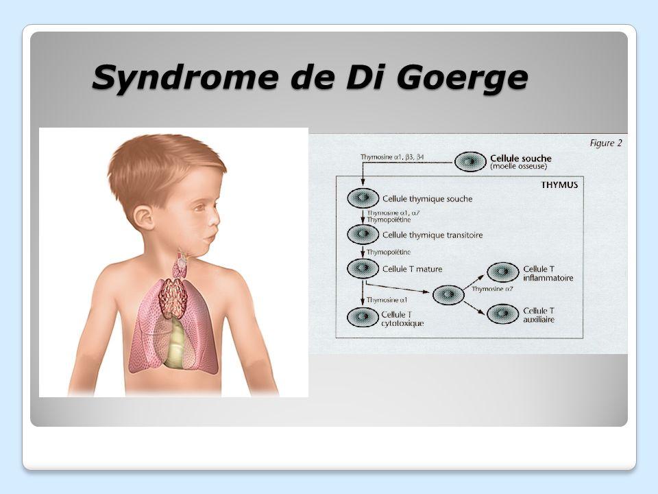 Syndrome de Di Goerge