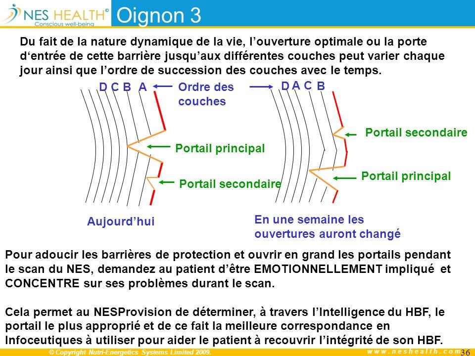 Oignon 3