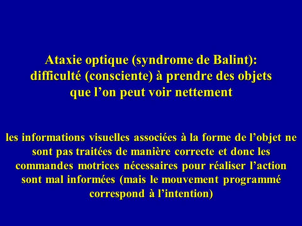 Ataxie optique (syndrome de Balint): difficulté (consciente) à prendre des objets que l'on peut voir nettement