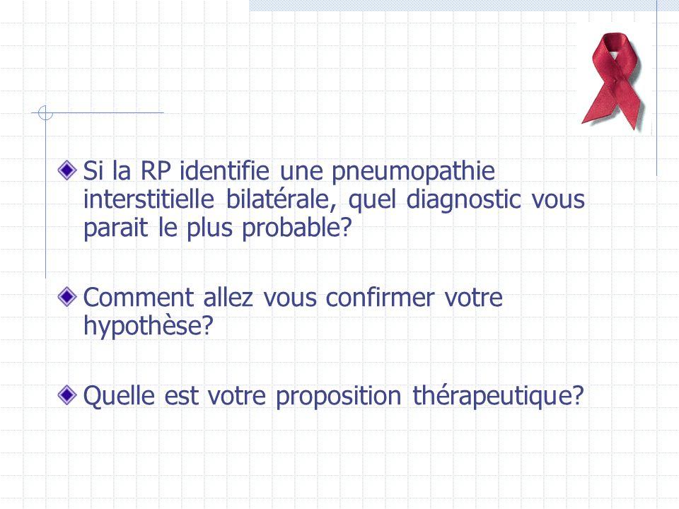 Si la RP identifie une pneumopathie interstitielle bilatérale, quel diagnostic vous parait le plus probable