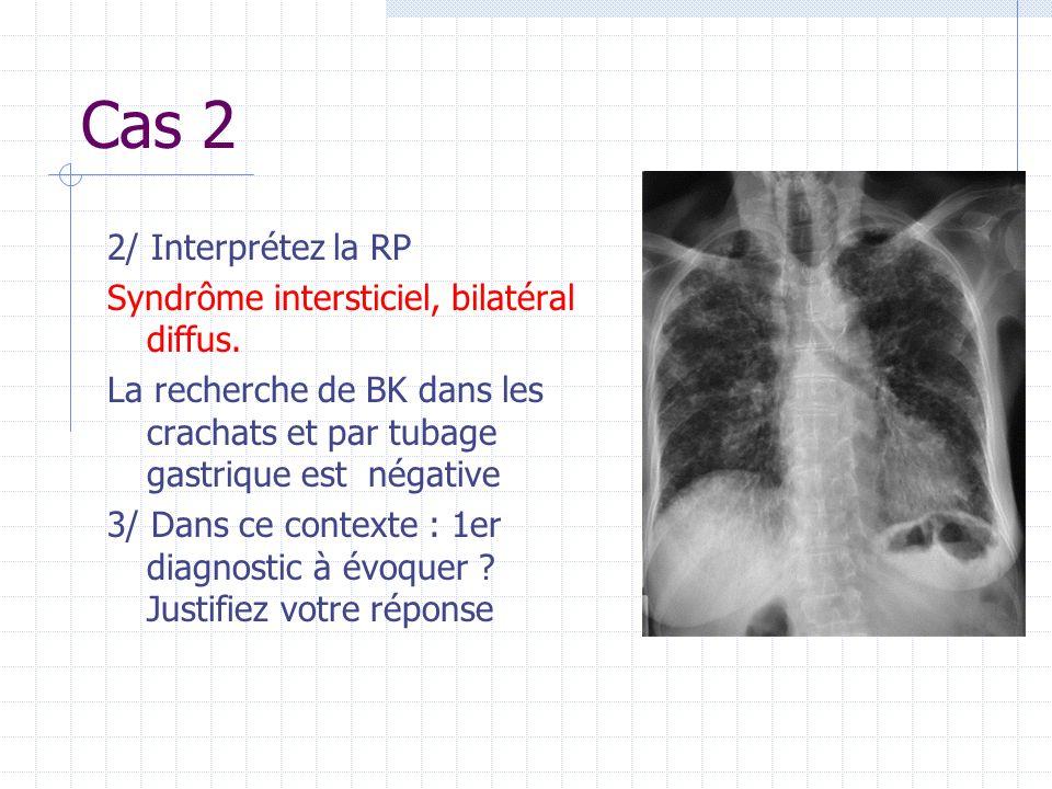 Cas 2 2/ Interprétez la RP Syndrôme intersticiel, bilatéral diffus.