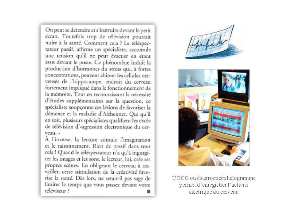 L'ECG ou électroencéphalogramme permet d'enregistrer l'activité électrique du cerveau